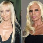 Donatella-Versace-opereret