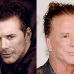 mickey rourke kosmetiske operationer